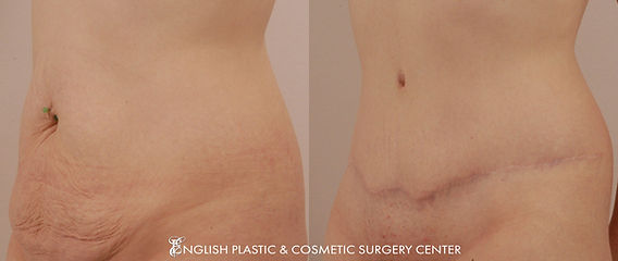 Before and after images of a woman after undergoing a tummy tuck (abdominoplasty) by Dr. Jim English at English Plastic & Cosmetic Surgery Center in Little Rock, AR | Case 10