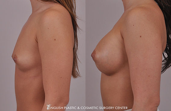 Before and after images of a woman after undergoing a breast augmentation (breast implants) by Dr. Jim English at English Plastic & Cosmetic Surgery Center in Little Rock, AR | Case 18