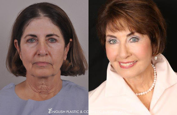 Before and after images of a woman after undergoing a chemical peel by Dr. Jim English at English Plastic & Cosmetic Surgery Center in Little Rock, AR | Case 8