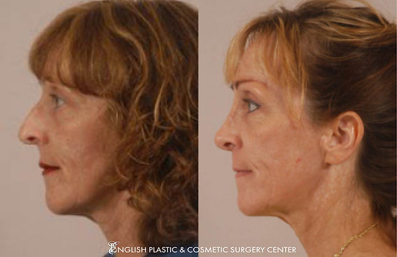 Before and after images of a woman after undergoing nose surgery (rhinoplasty) by Dr. Jim English at English Plastic & Cosmetic Surgery Center in Little Rock, AR | Case 1