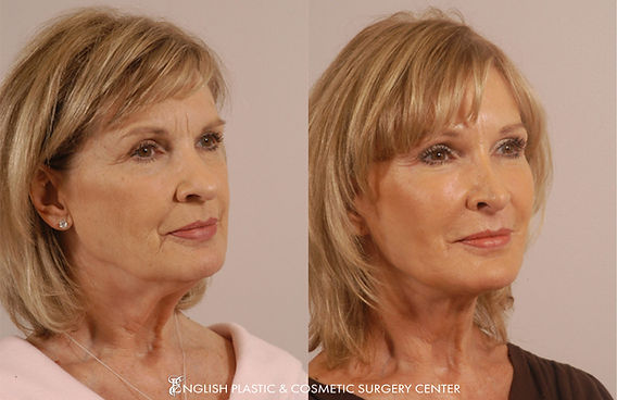 Before and after images of a woman after undergoing facial liposuction by Dr. Jim English at English Plastic & Cosmetic Surgery Center in Little Rock, AR | Case 7