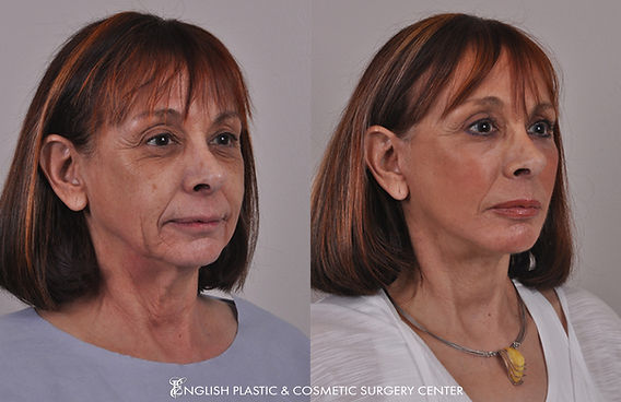 Before and after images of a woman after undergoing a chin augmentation by Dr. Jim English at English Plastic & Cosmetic Surgery Center in Little Rock, AR | Case 17