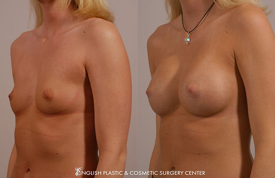 Before and after images of a woman after undergoing a breast augmentation (breast implants) by Dr. Jim English at English Plastic & Cosmetic Surgery Center in Little Rock, AR | Case