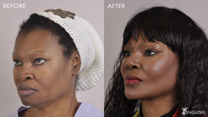 Facelift vs. Facial/Submental Liposuction