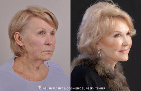 Before and after images of a woman after undergoing a facelift by Dr. Jim English at English Plastic & Cosmetic Surgery Center in Little Rock, AR | Case 16