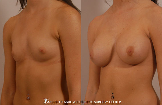 Before and after images of a woman after undergoing a breast augmentation (breast implants) by Dr. Jim English at English Plastic & Cosmetic Surgery Center in Little Rock, AR | Case 9
