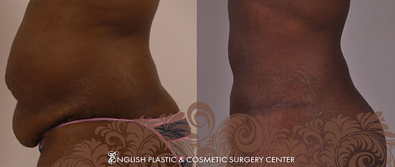 Before and after images of a woman after undergoing a tummy tuck (abdominoplasty) by Dr. Jim English at English Plastic & Cosmetic Surgery Center in Little Rock, AR | Case 4
