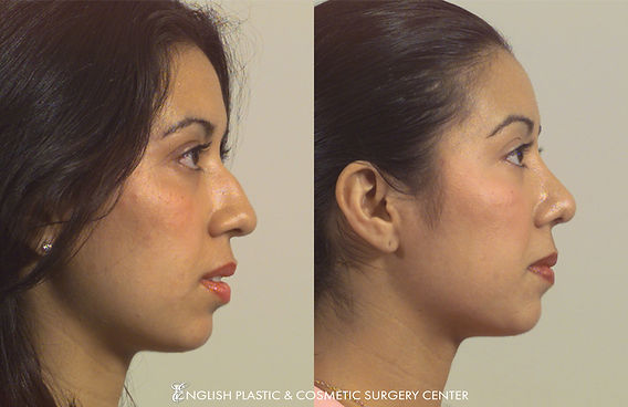 Before and after images of a woman after undergoing nose surgery (rhinoplasty) by Dr. Jim English at English Plastic & Cosmetic Surgery Center in Little Rock, AR | Case 14
