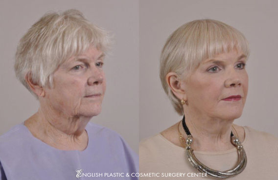 Before and after images of a woman after undergoing a facelift by Dr. Jim English at English Plastic & Cosmetic Surgery Center in Little Rock, AR | Case 9