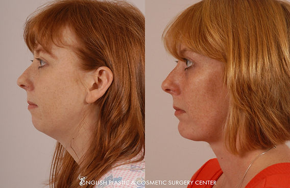 Before and after images of a woman after undergoing facial liposuction by Dr. Jim English at English Plastic & Cosmetic Surgery Center in Little Rock, AR | Case 16