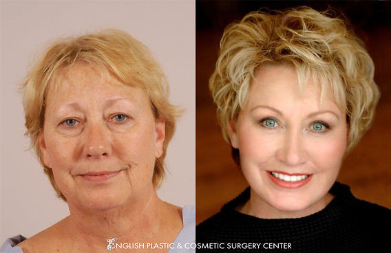 Before and after images of a woman after undergoing a chin augmentation by Dr. Jim English at English Plastic & Cosmetic Surgery Center in Little Rock, AR | Case 3