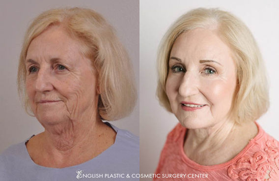 Before and after images of a woman after undergoing a neck lift, chin implant, and dermabrasion by Dr. Jim English at English Plastic & Cosmetic Surgery Center in Little Rock, AR | Case 141