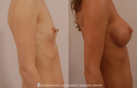 Before and after images of a woman after undergoing a breast augmentation (breast implants) by Dr. Jim English at English Plastic & Cosmetic Surgery Center in Little Rock, AR | Case 19
