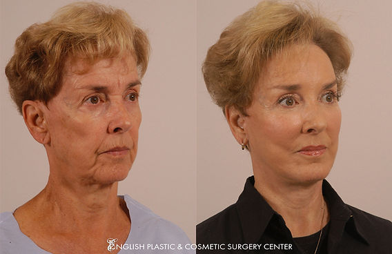 Before and after images of a woman after undergoing a brow lift by Dr. Jim English at English Plastic & Cosmetic Surgery Center in Little Rock, AR | Case 18