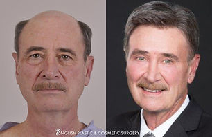 Dr. Jim English | Brow lift, upper and lower eyelid surgery (blepharoplasty), chemical peel, fat transfer to lower lids