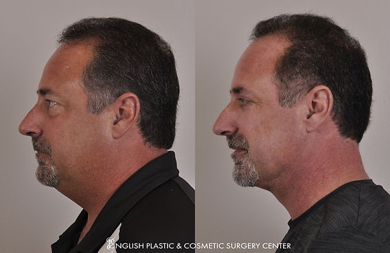 Before and after images of a man after undergoing facial liposuction by Dr. Jim English at English Plastic & Cosmetic Surgery Center in Little Rock, AR | Case 27