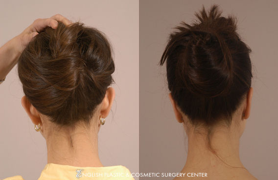 Before and after images of a woman after undergoing ear surgery (otoplasty) by Dr. Jim English at English Plastic & Cosmetic Surgery Center in Little Rock, AR | Case 6