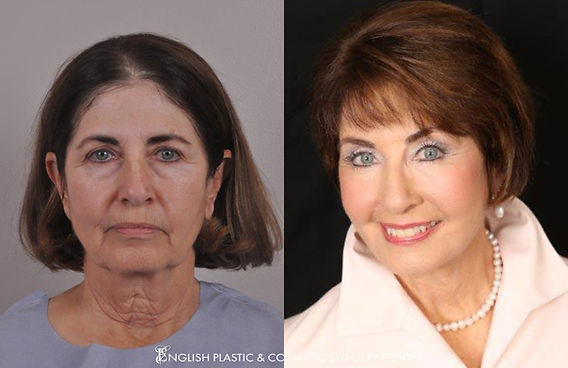 Before and after images of a woman after undergoing a facelift by Dr. Jim English at English Plastic & Cosmetic Surgery Center in Little Rock, AR | Case 17