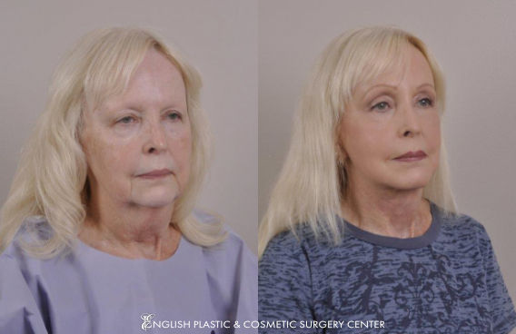 Before and after images of a woman after undergoing eyelid surgery (blepharoplasty) by Dr. Jim English at English Plastic & Cosmetic Surgery Center in Little Rock, AR | Case 8