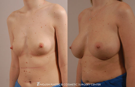 Before and after images of a woman after undergoing a breast augmentation (breast implants) by Dr. Jim English at English Plastic & Cosmetic Surgery Center in Little Rock, AR | Case 12