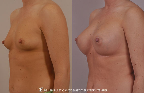 Before and after images of a woman after undergoing a breast augmentation (breast implants) by Dr. Jim English at English Plastic & Cosmetic Surgery Center in Little Rock, AR | Case 7