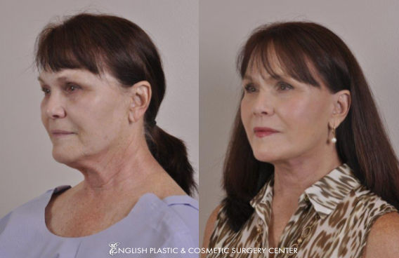 Before and after images of a woman after undergoing a facelift by Dr. Jim English at English Plastic & Cosmetic Surgery Center in Little Rock, AR | Case 12