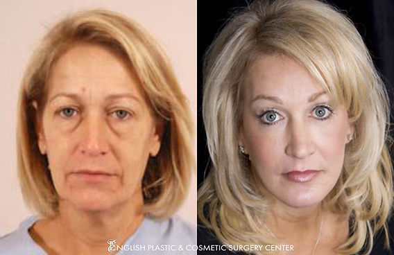 Before and after images of a woman after undergoing a facelift by Dr. Jim English at English Plastic & Cosmetic Surgery Center in Little Rock, AR | Case 1