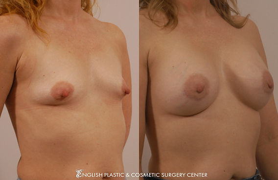 Before and after images of a woman after undergoing a breast augmentation (breast implants) by Dr. Jim English at English Plastic & Cosmetic Surgery Center in Little Rock, AR | Case 15