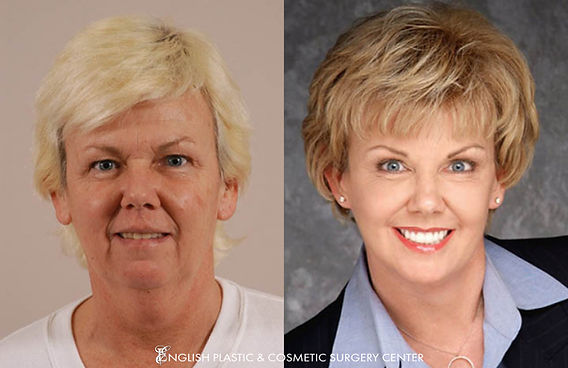 Before and after images of a woman after undergoing a neck lift and chemical peel by Dr. Jim English at English Plastic & Cosmetic Surgery Center in Little Rock, AR | Case 142
