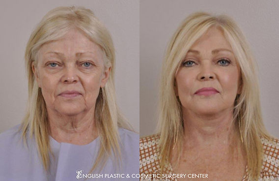 Before and after images of a woman after undergoing eyelid surgery (blepharoplasty) by Dr. Jim English at English Plastic & Cosmetic Surgery Center in Little Rock, AR | Case 21