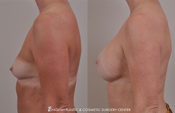 Before and after images of a woman after undergoing a breast augmentation (breast implants) by Dr. Jim English at English Plastic & Cosmetic Surgery Center in Little Rock, AR | Case 6