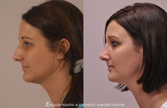 Before and after images of a woman after undergoing nose surgery (rhinoplasty) by Dr. Jim English at English Plastic & Cosmetic Surgery Center in Little Rock, AR | Case 11