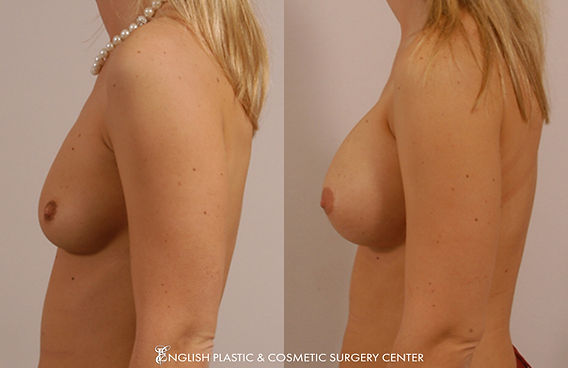 Before and after images of a woman after undergoing a breast augmentation (breast implants) by Dr. Jim English at English Plastic & Cosmetic Surgery Center in Little Rock, AR | Case 16