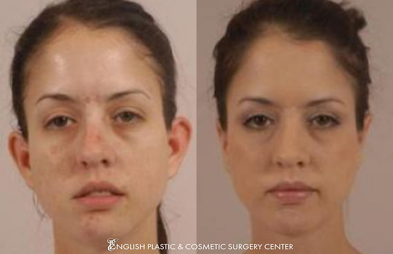 Before and after images of a woman after undergoing ear surgery (otoplasty) by Dr. Jim English at English Plastic & Cosmetic Surgery Center in Little Rock, AR | Case 2