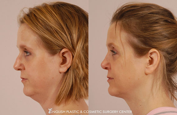 Before and after images of a woman after undergoing facial liposuction by Dr. Jim English at English Plastic & Cosmetic Surgery Center in Little Rock, AR | Case 3