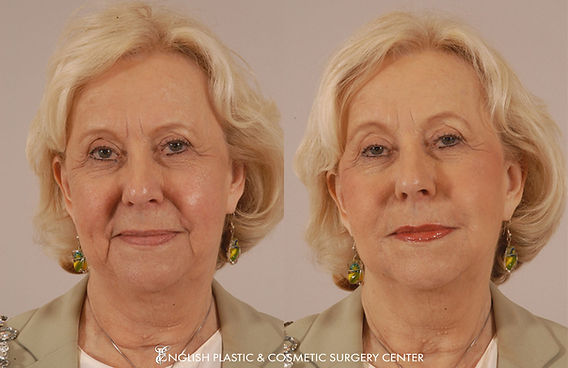 Before and after images of a woman after undergoing a filler procedure by Dr. Jim English at English Plastic & Cosmetic Surgery Center in Little Rock, AR | Case 5