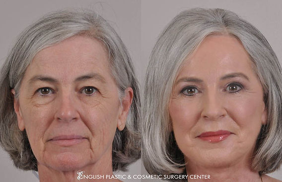 Before and after images of a woman after undergoing a facelift by Dr. Jim English at English Plastic & Cosmetic Surgery Center in Little Rock, AR | Case 15