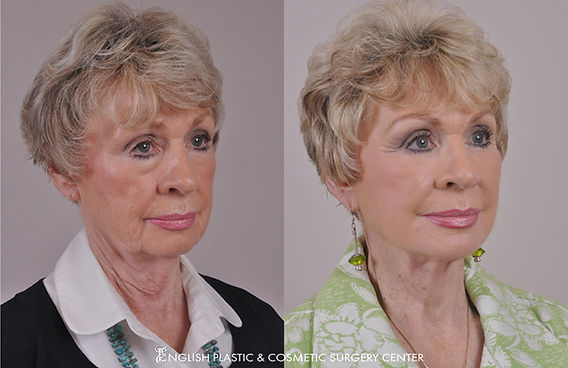 Before and after images of a woman after undergoing facial liposuction by Dr. Jim English at English Plastic & Cosmetic Surgery Center in Little Rock, AR | Case 12