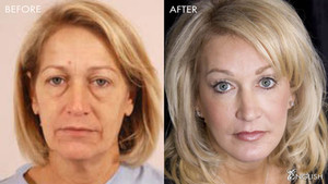 The Face Doctor, Dr. Jim English, talks FACELIFT