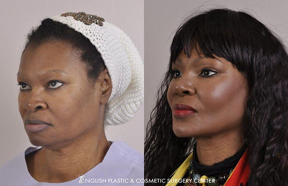 Before and after images of a woman after undergoing facial liposuction by Dr. Jim English at English Plastic & Cosmetic Surgery Center in Little Rock, AR | Case 1