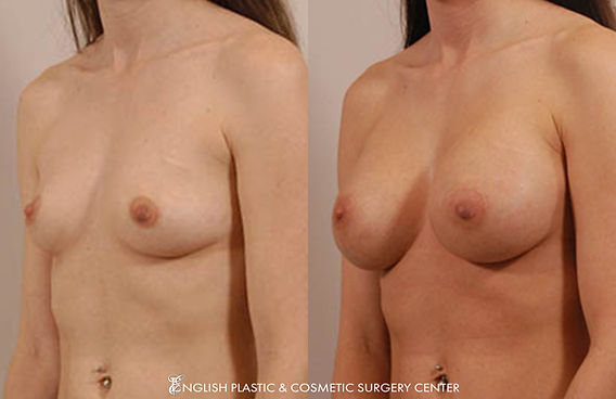 Before and after images of a woman after undergoing a breast augmentation (breast implants) by Dr. Jim English at English Plastic & Cosmetic Surgery Center in Little Rock, AR | Case 4