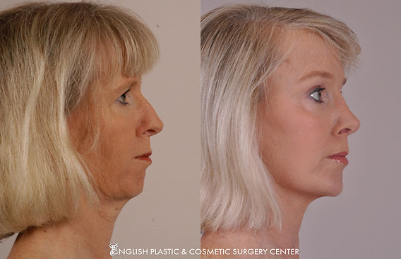 Before and after images of a woman after undergoing a chin augmentation by Dr. Jim English at English Plastic & Cosmetic Surgery Center in Little Rock, AR | Case 12