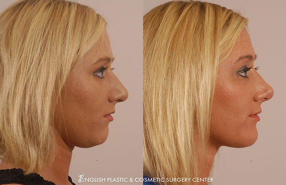Before and after images of a woman after undergoing a chin augmentation by Dr. Jim English at English Plastic & Cosmetic Surgery Center in Little Rock, AR | Case 11