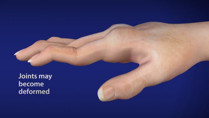 Rheumatoid Arthritis of Hand and Fingers