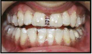 PREDICTABLE RESULTS USING CLEAR ALIGNERS: CASE REPORTS