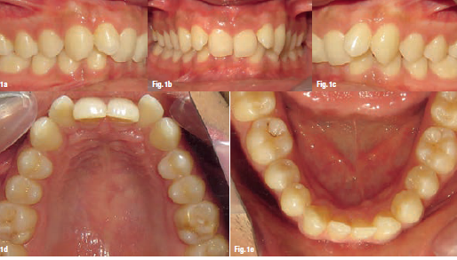 Widening the scopeof aligner application: A case report