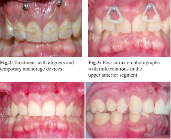 Traumatic bite resolution using        K Clear Aligners