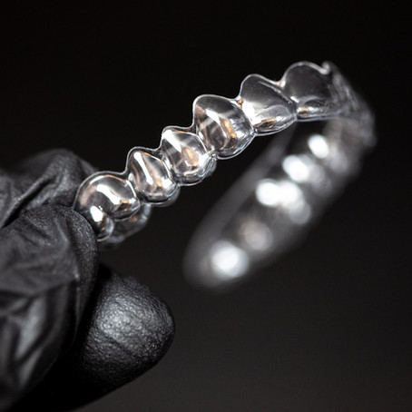 A new dimension in orthodontics called 4D