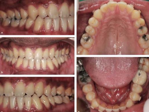 Behandlung eines frontal offenen Bisses mit dem K Line Clear System