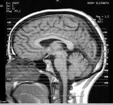 $11.6 Million jury verdict for failure to diagnose/treat stroke